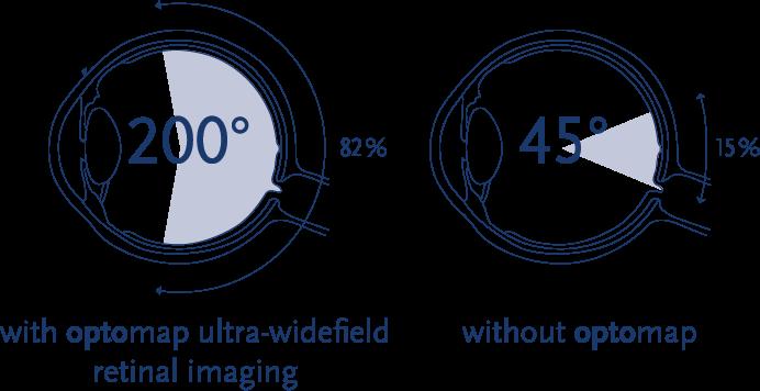 optomap comparison graphic