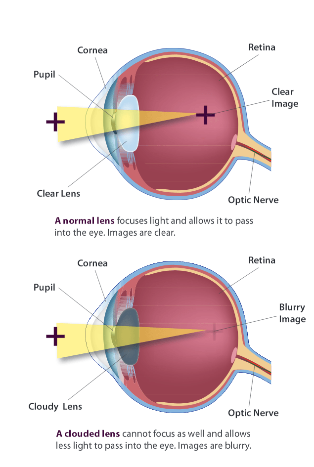 illustration of an eye cross section showing a clear lens and a cloudy lens