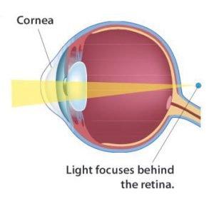 hyperopia eye diagram