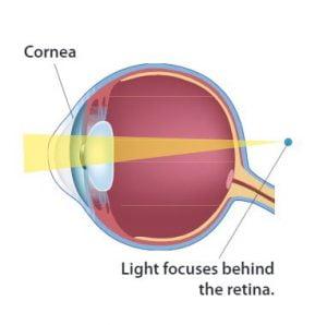 presbyopia eye diagram