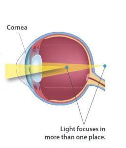 astigmatism eye diagram