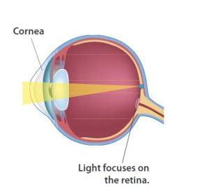 normal eye diagram