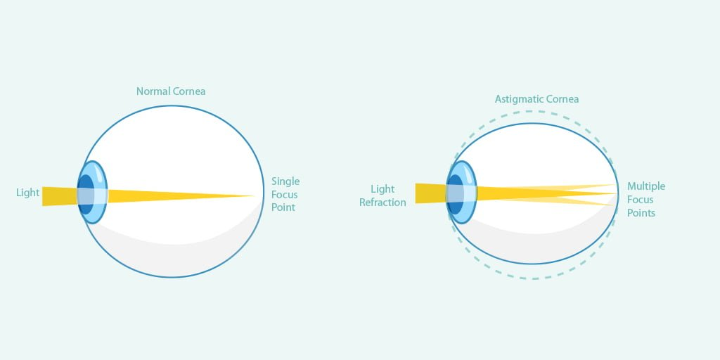 5 Things You Should Know About Astigmatism