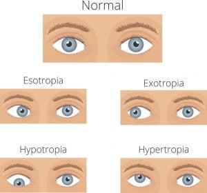 schedule eye exam button
