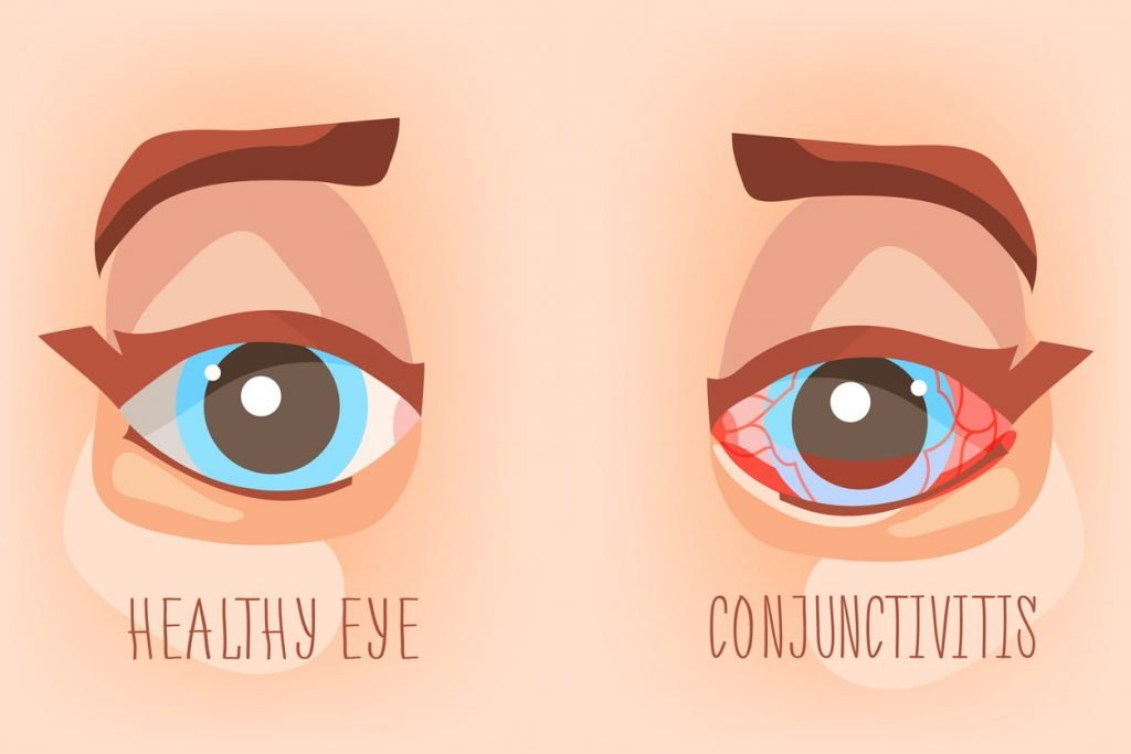 illustration showing a healthy eye and an eye with conjunctivitis