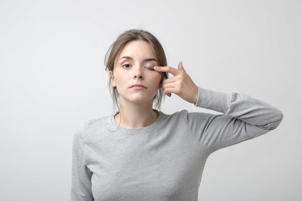 woman closing one eye, showing possible lazy eye symptoms