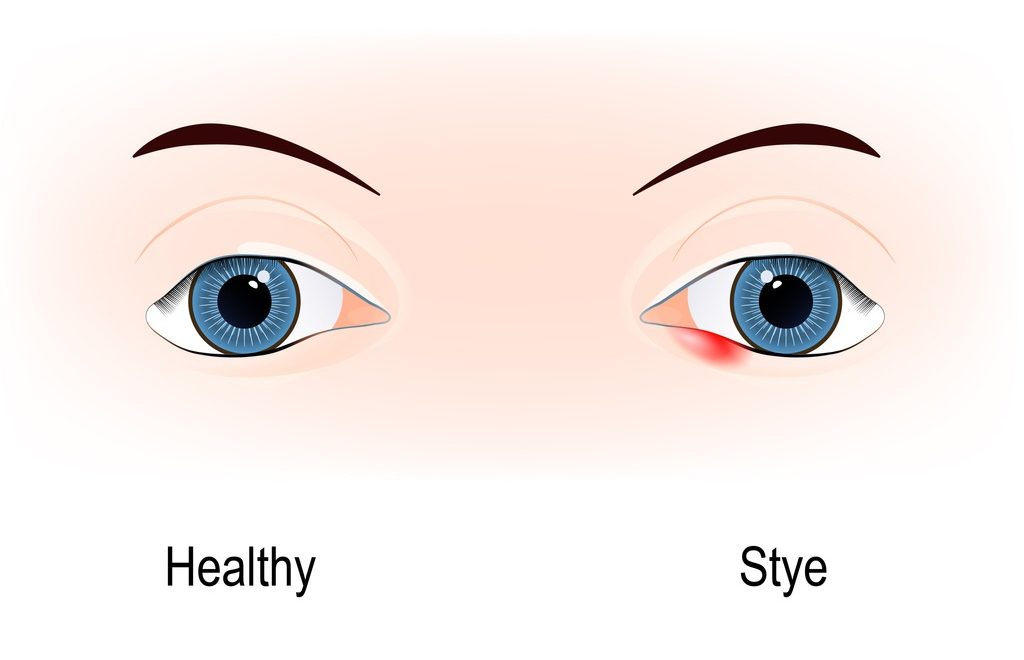 How To Get Rid of a Swollen Eyelid | Causes and Treatment